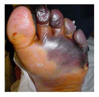 Kalau ini sih belum parah dibandingkan dengan kondisi kaki kanan kakak ipar saya. (foto diambil dari www.ahlinyadiabet.com)